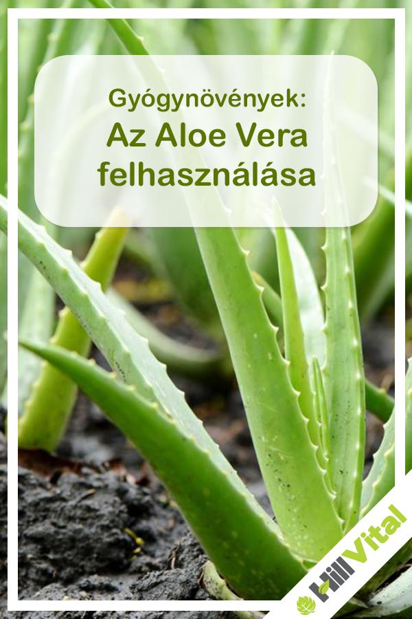 aloe vera ízületi fájdalmak esetén)