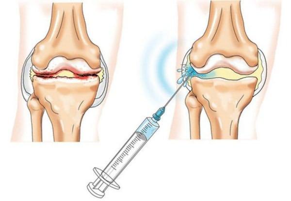don csípőízület artrózisával jár)