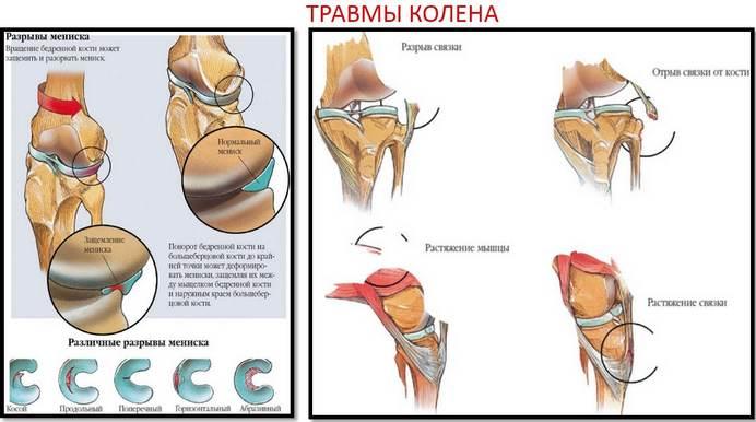 a csípőízület teraflex artrózisának kezelése