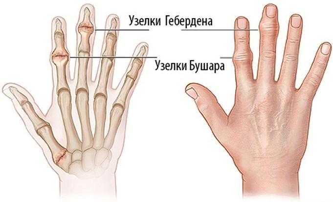 a kis ujjízület fáj, ha meghajlik)