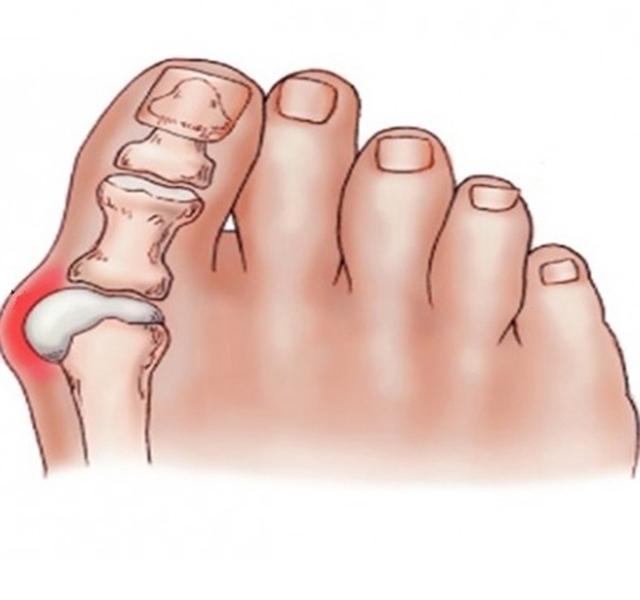 fájdalom a nagy lábujj ízületében
