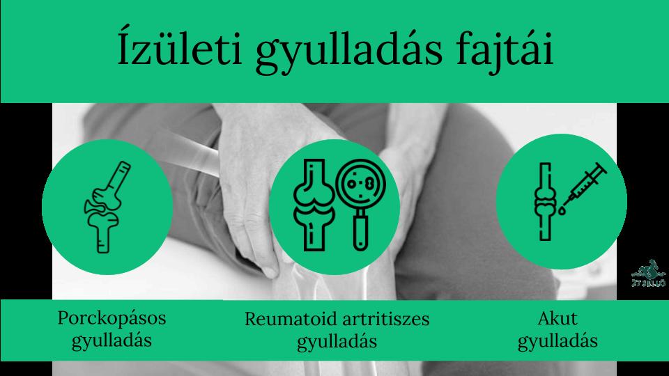 Ízületi gyulladás (arthritis) - A legfontosabb tudnivalók