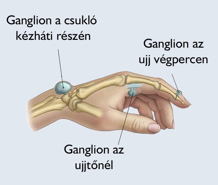 csukló-ín ganglion kezelés)