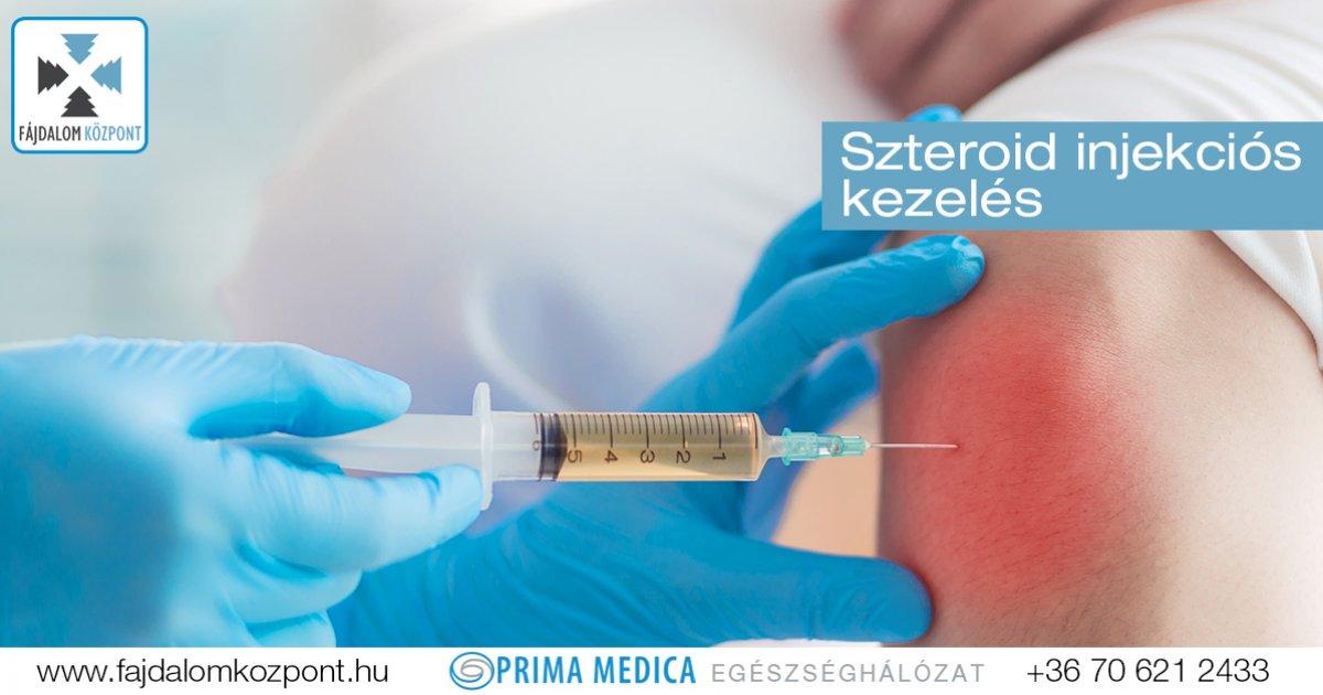 A gyulladáscsökkentő (szteroid) injekciókról | Dr. Gergely Zsolt