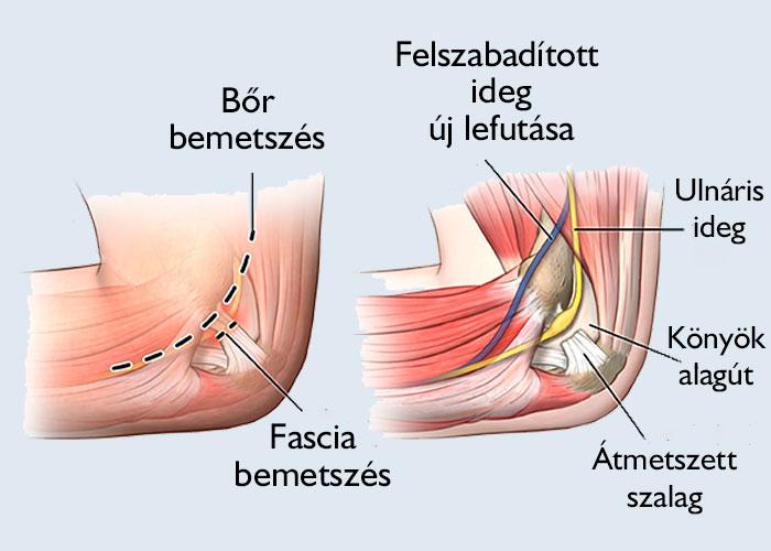 gyógyulás a könyökízület sérülései után ha séta ízületi fájdalom
