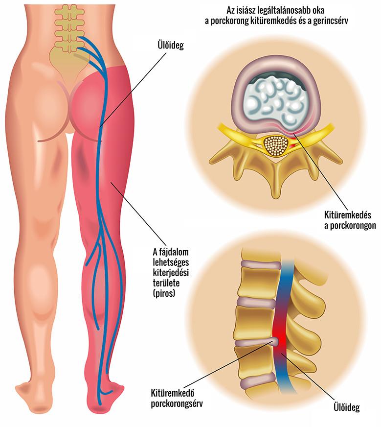 eséskor fájdalom a csípő területén)