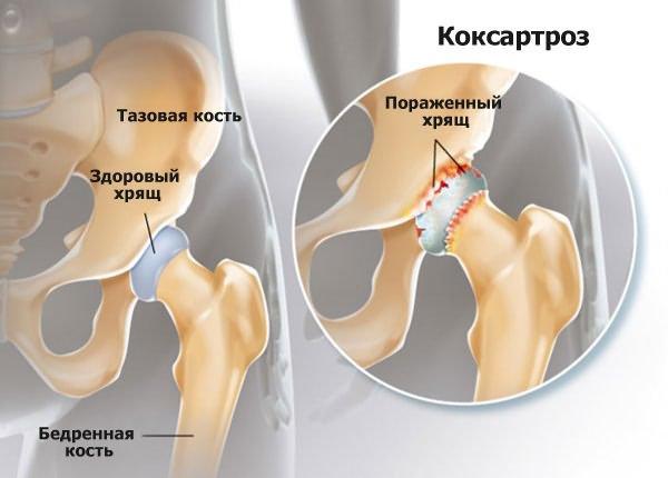 a csípőízületek deformáló artrózisa 1 evőkanál