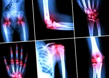 a térd osteoarthritisje
