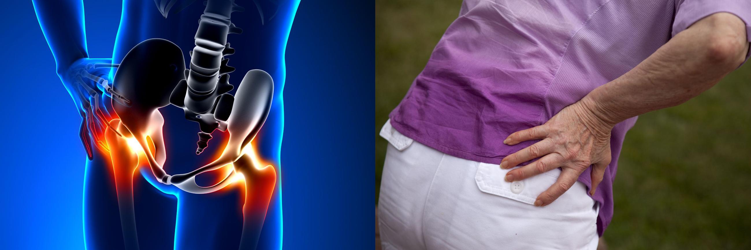 hogyan lehet megtudni, mi a fáj a csípőízület