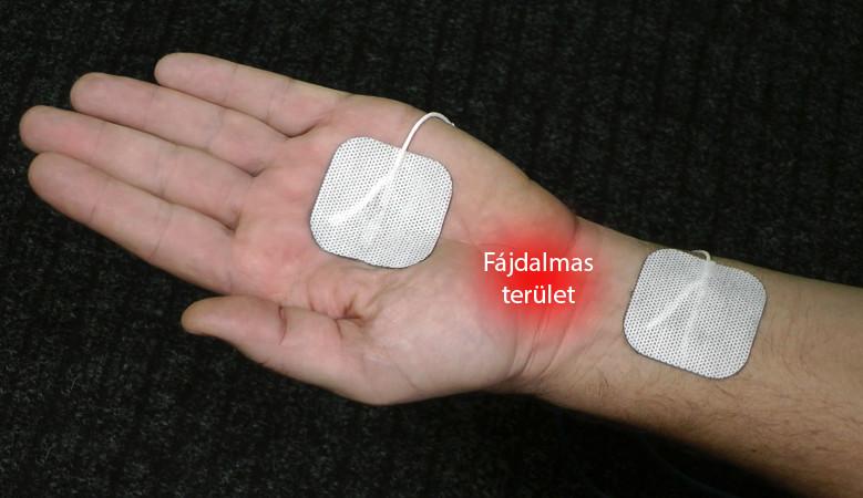 hirudoterápiás térdízületi kezelés)