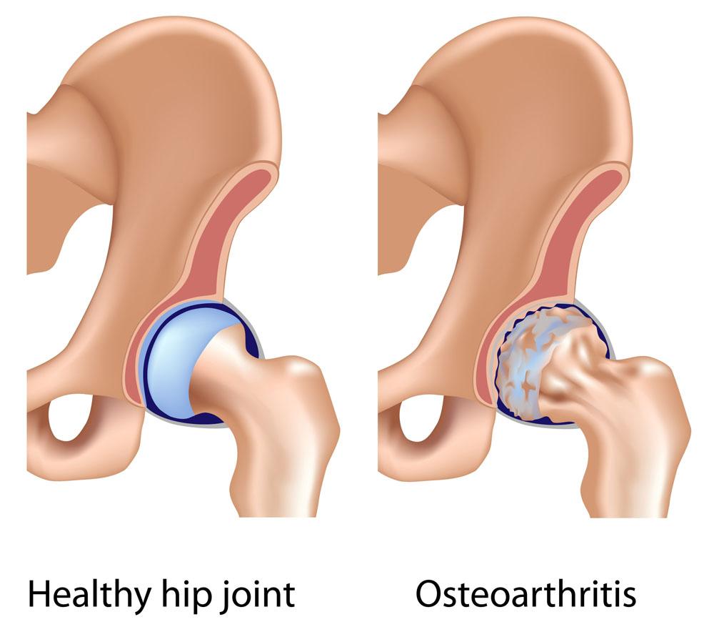 csípő osteoarthritis és kezelése