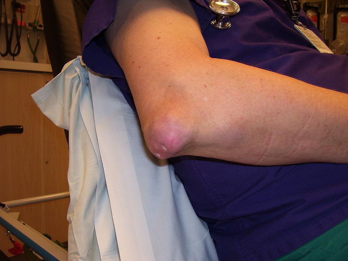 ízületi fájdalom prednizon után ízületi betegségek okai és kezelése