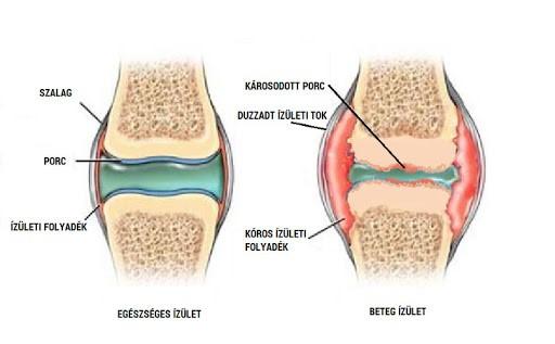 hogyan kezeljük az összes ízület artrózisát