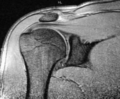 kiegészítők a vállízület artrózisához)