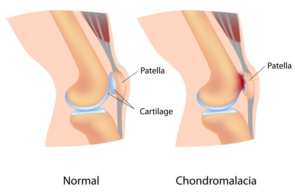 3 fokos térdízület kezelés artrózisa)