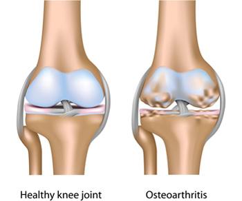 fájdalom a csípő- és térdízületekben)