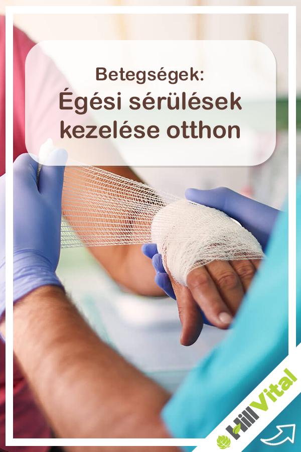 Égési sérülések: megelőzés, kezelés