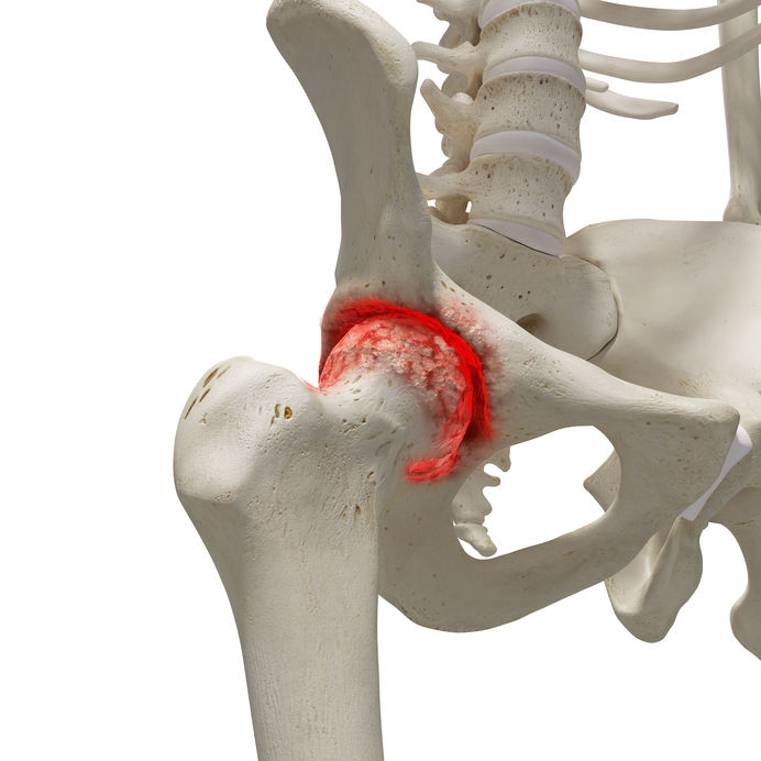 hogyan lehet kezelni a csípőízületi gyulladás kezdeti stádiumát)