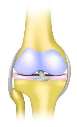 hosszú távú artrózis kezelés)
