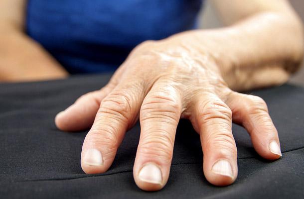 kezelhető-e a rheumatoid arthritis metotrexát nélkül)