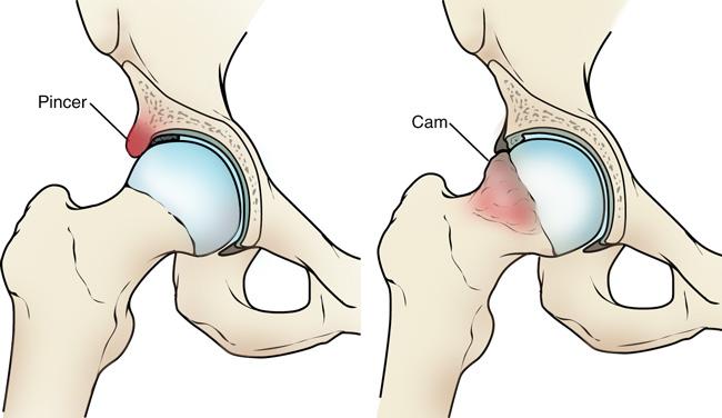 éles fájdalom a csípőízületben hajlításkor)