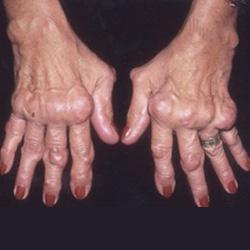 mi a kéz reumás ízületi gyulladása)