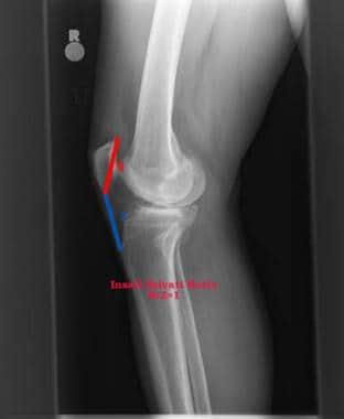 mi a patella arthritis