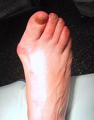 Rubeola arthritis
