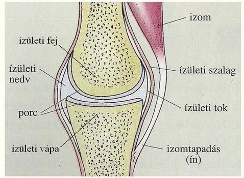 szivacsos ízületi betegség)