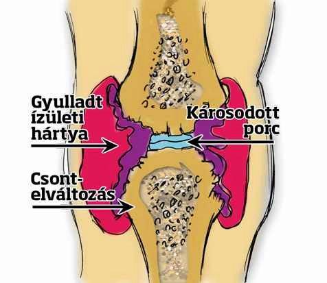 térdízületi gyulladás súlyos